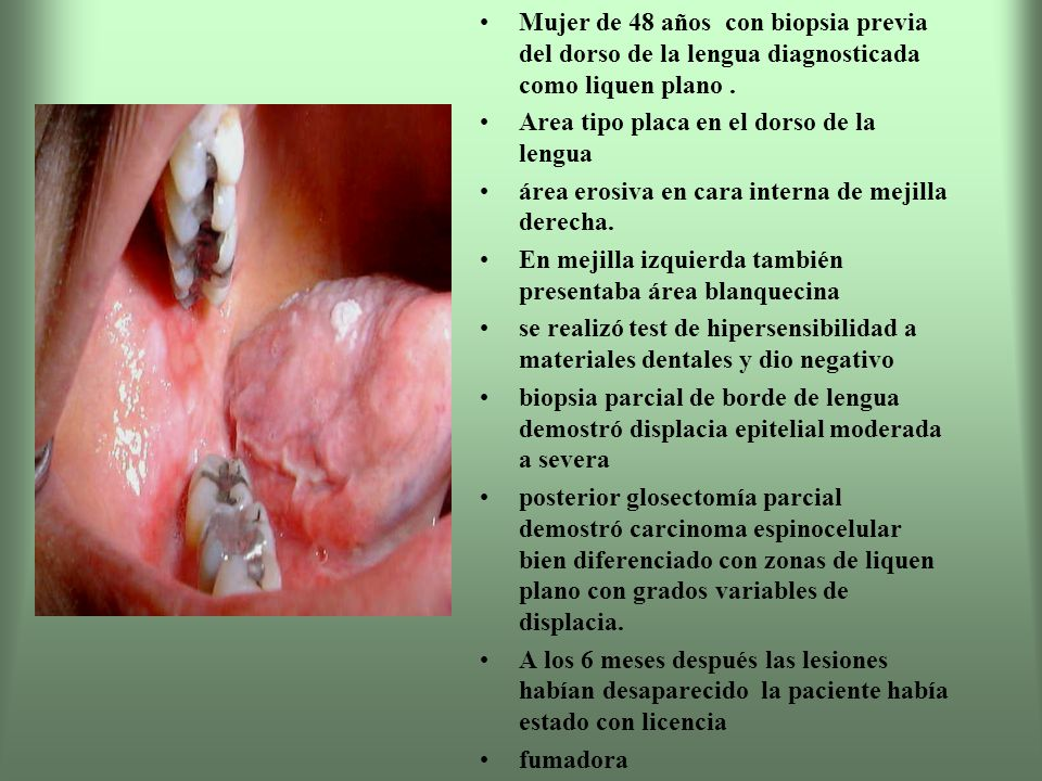 Mujer de 48 años con biopsia previa del dorso de la lengua diagnosticada como liquen plano .