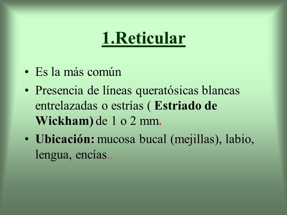 1.Reticular Es la más común