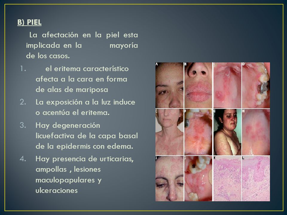 B) PIEL La afectación en la piel esta implicada en la mayoría de los casos.