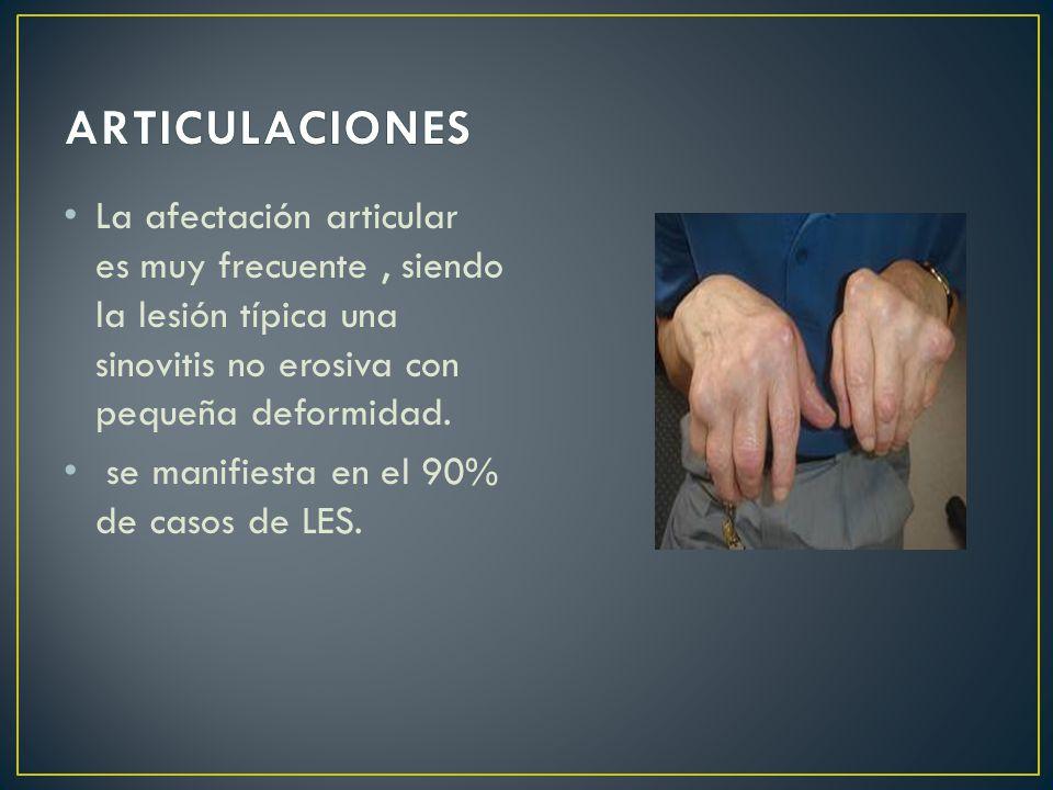 ARTICULACIONES La afectación articular es muy frecuente , siendo la lesión típica una sinovitis no erosiva con pequeña deformidad.