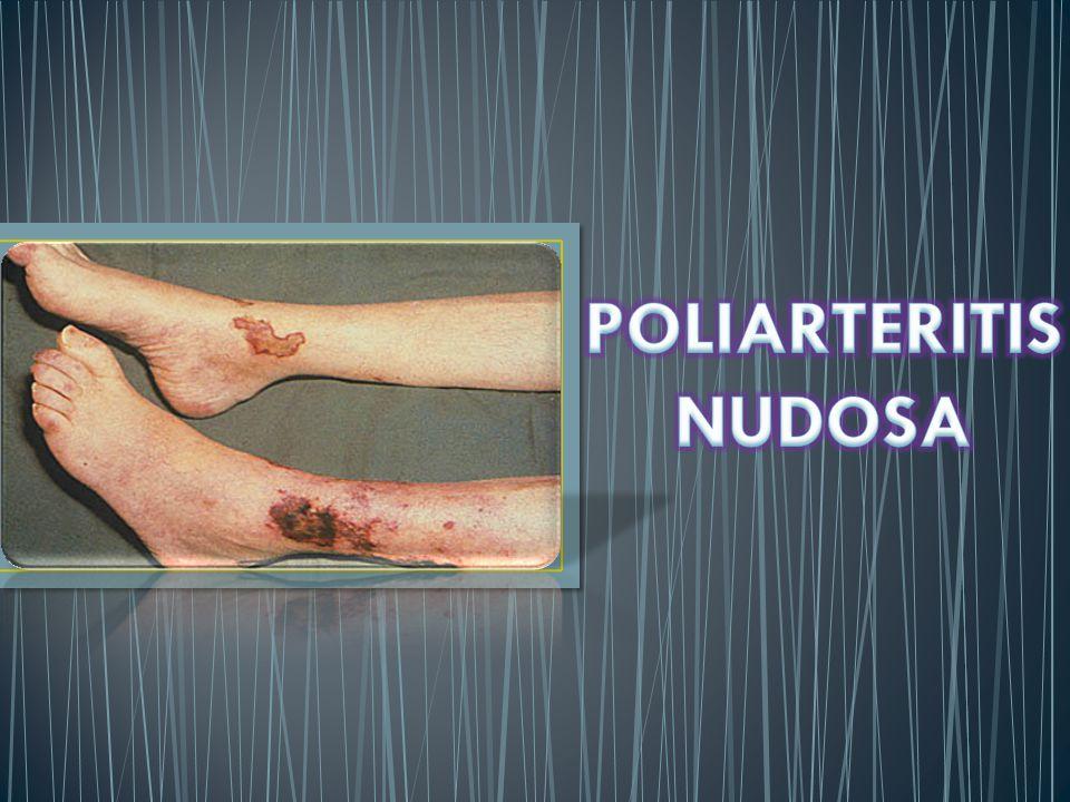 POLIARTERITIS NUDOSA