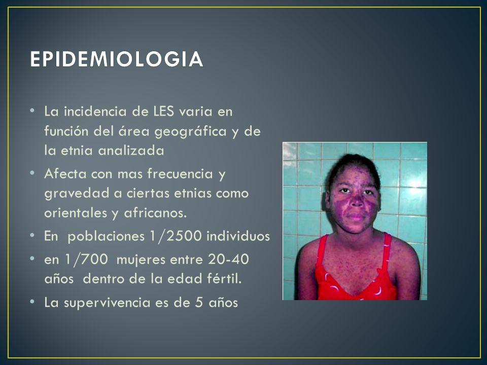 EPIDEMIOLOGIA La incidencia de LES varia en función del área geográfica y de la etnia analizada.