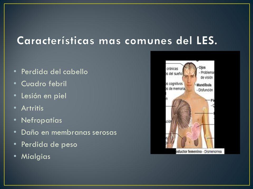 Características mas comunes del LES.