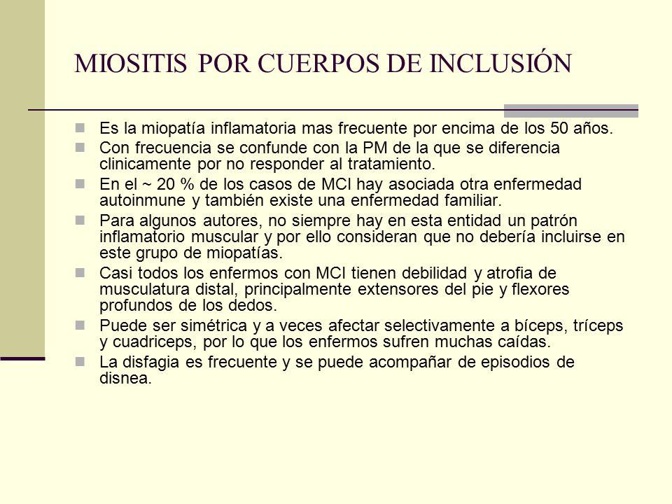 MIOSITIS POR CUERPOS DE INCLUSIÓN