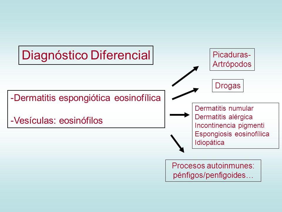 Procesos autoinmunes: pénfigos/penfigoides…