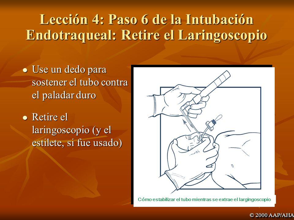 Lección 4: Paso 6 de la Intubación Endotraqueal: Retire el Laringoscopio