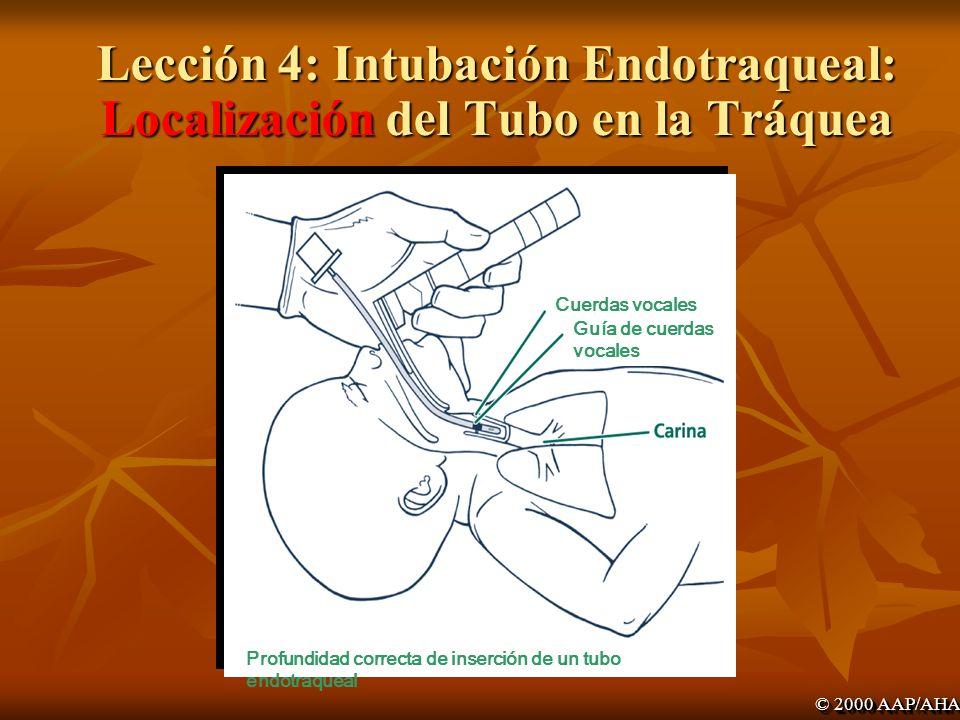 Lección 4: Intubación Endotraqueal: Localización del Tubo en la Tráquea