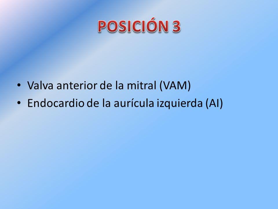 POSICIÓN 3 Valva anterior de la mitral (VAM)