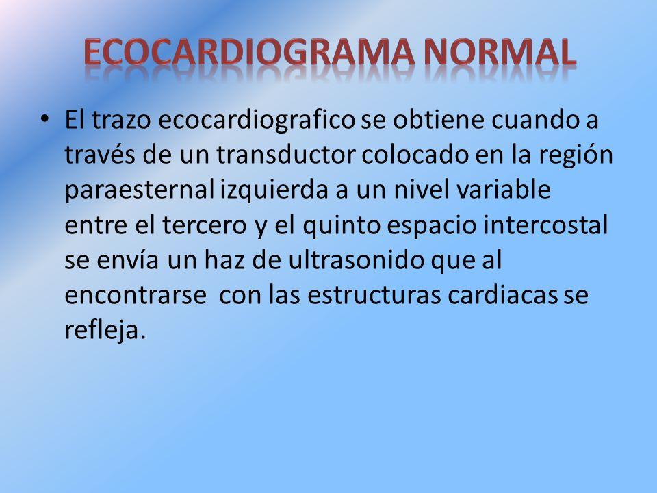 ECOCARDIOGRAMA NORMAL
