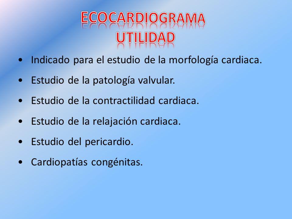 ECOCARDIOGRAMA UTILIDAD