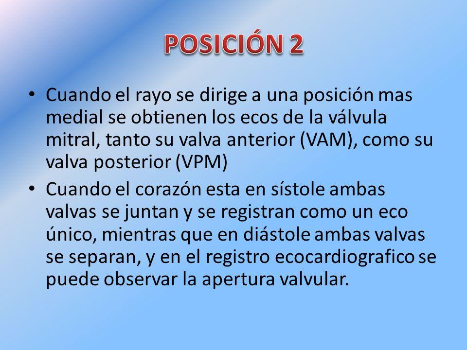 POSICIÓN 2