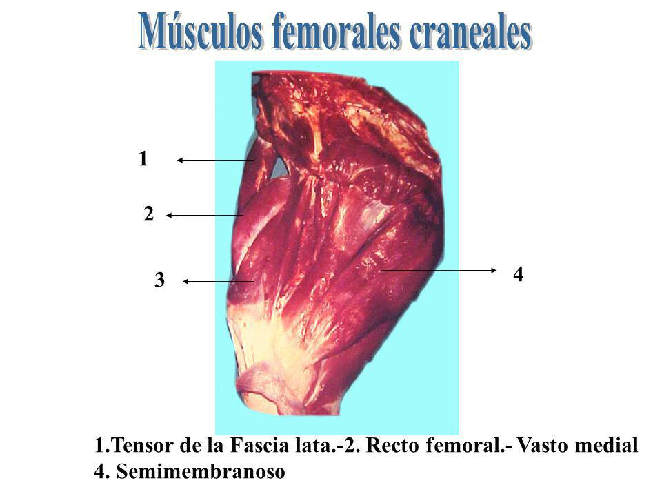 Músculos femorales craneales