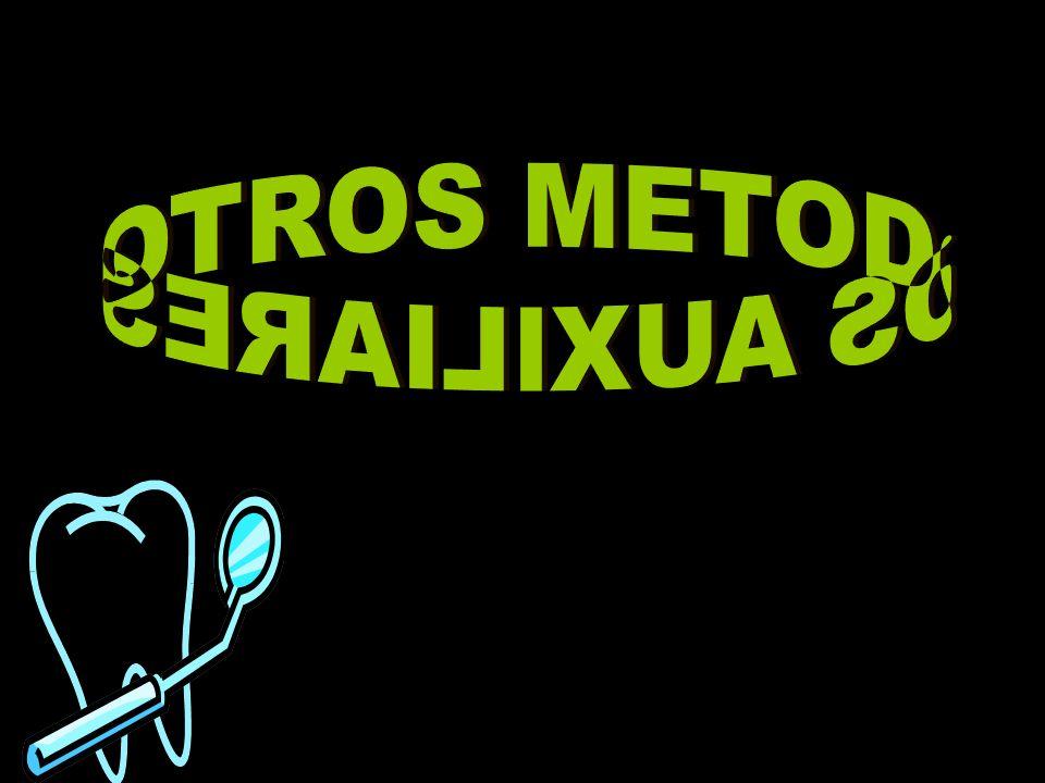 OTROS METODOS AUXILIARES
