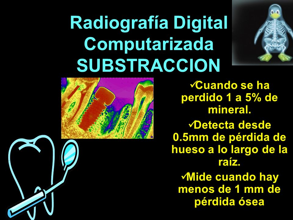 Radiografía Digital Computarizada SUBSTRACCION