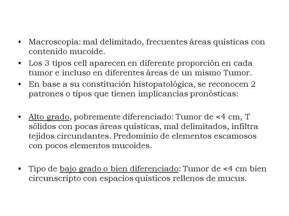 Macroscopía: mal delimitado, frecuentes áreas quísticas con contenido mucoide.