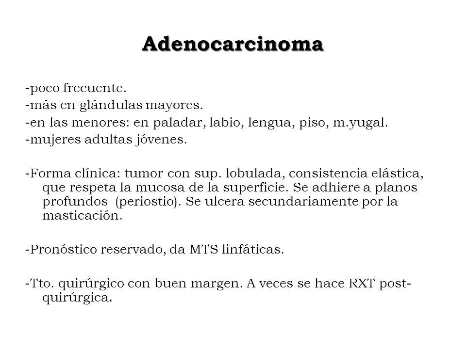 Adenocarcinoma -poco frecuente. -más en glándulas mayores.
