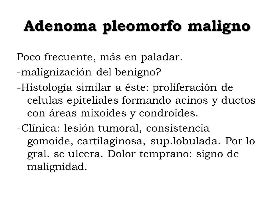 Adenoma pleomorfo maligno