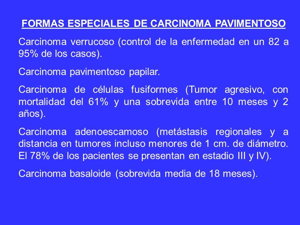 FORMAS ESPECIALES DE CARCINOMA PAVIMENTOSO