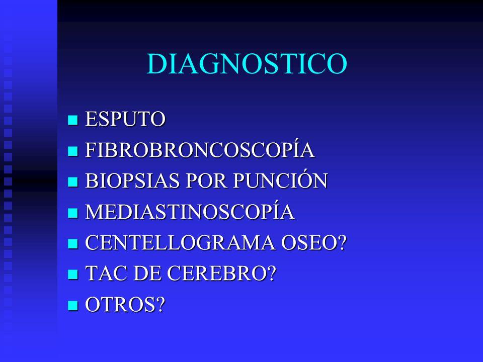 DIAGNOSTICO ESPUTO FIBROBRONCOSCOPÍA BIOPSIAS POR PUNCIÓN