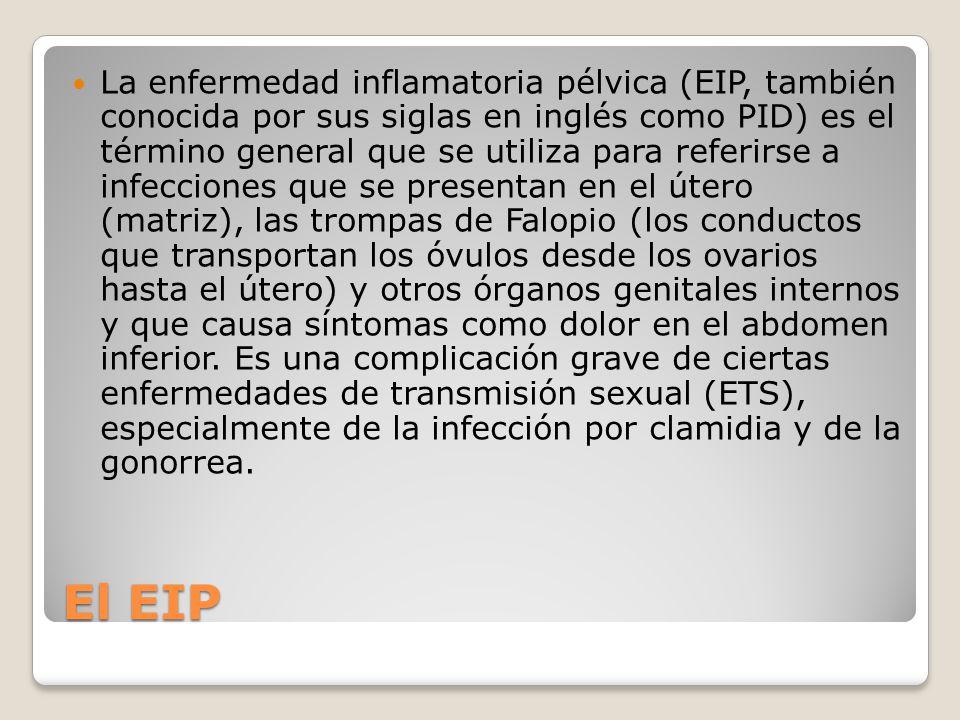 La enfermedad inflamatoria pélvica (EIP, también conocida por sus siglas en inglés como PID) es el término general que se utiliza para referirse a infecciones que se presentan en el útero (matriz), las trompas de Falopio (los conductos que transportan los óvulos desde los ovarios hasta el útero) y otros órganos genitales internos y que causa síntomas como dolor en el abdomen inferior. Es una complicación grave de ciertas enfermedades de transmisión sexual (ETS), especialmente de la infección por clamidia y de la gonorrea.