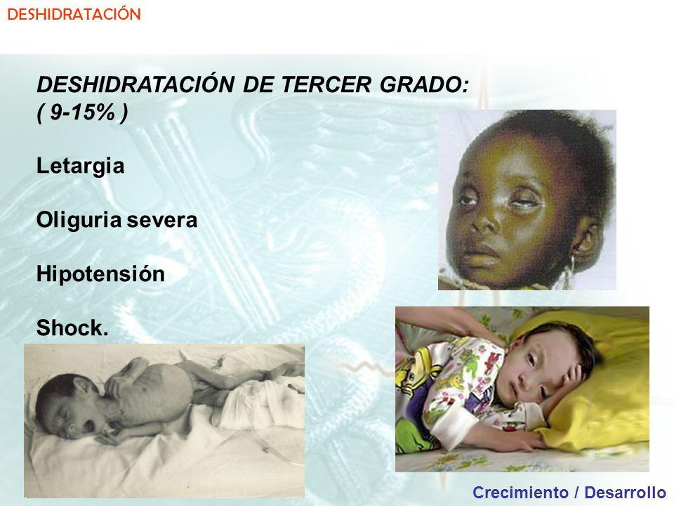 DESHIDRATACIÓN DE TERCER GRADO: ( 9-15% ) Letargia Oliguria severa