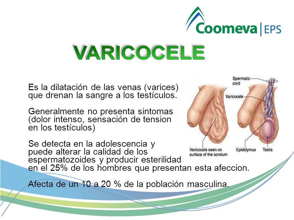 VARICOCELE Es la dilatación de las venas (varices)