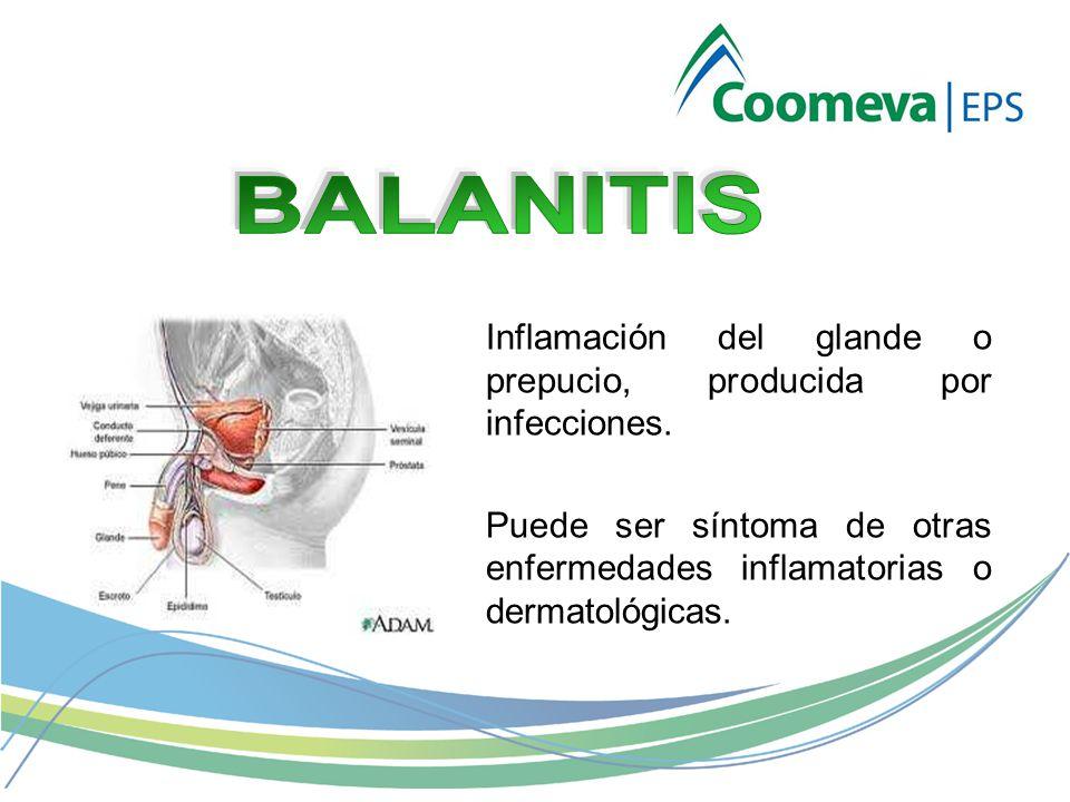 BALANITIS Inflamación del glande o prepucio, producida por infecciones. Puede ser síntoma de otras enfermedades inflamatorias o dermatológicas.