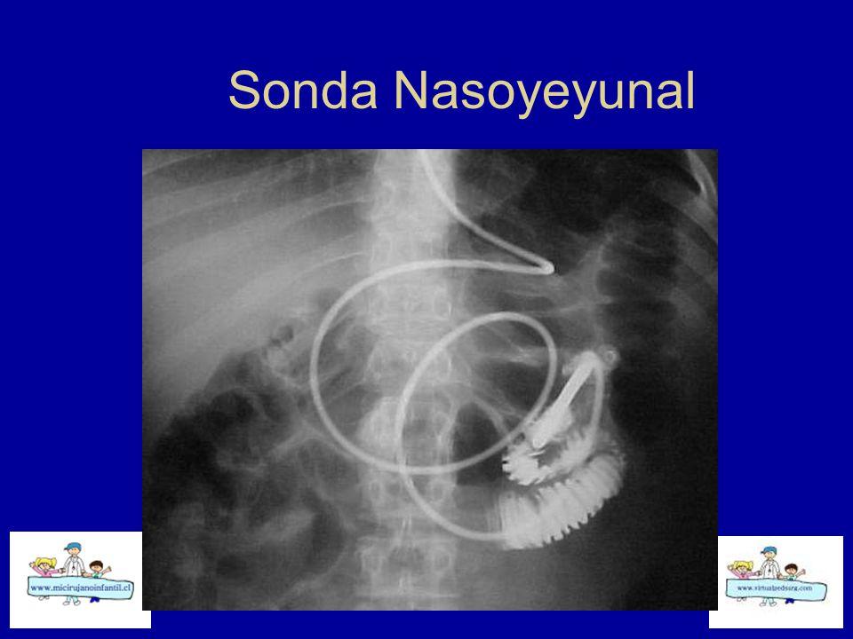 Sonda Nasoyeyunal