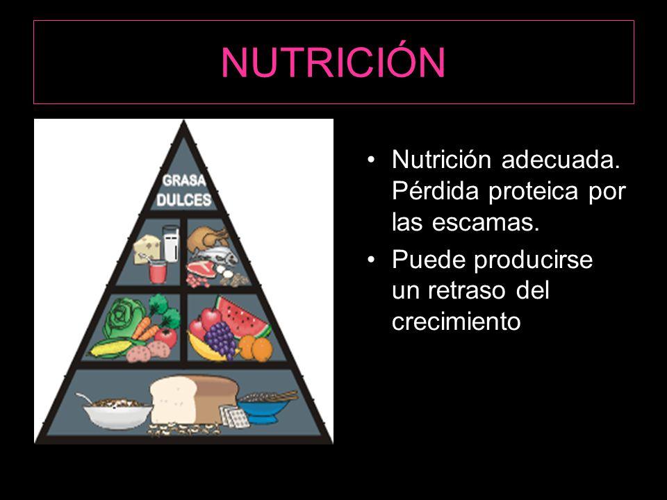NUTRICIÓN Nutrición adecuada. Pérdida proteica por las escamas.