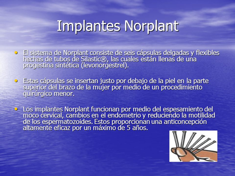 Implantes Norplant
