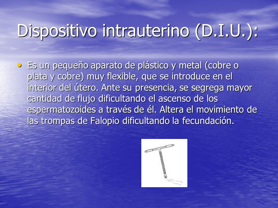 Dispositivo intrauterino (D.I.U.):