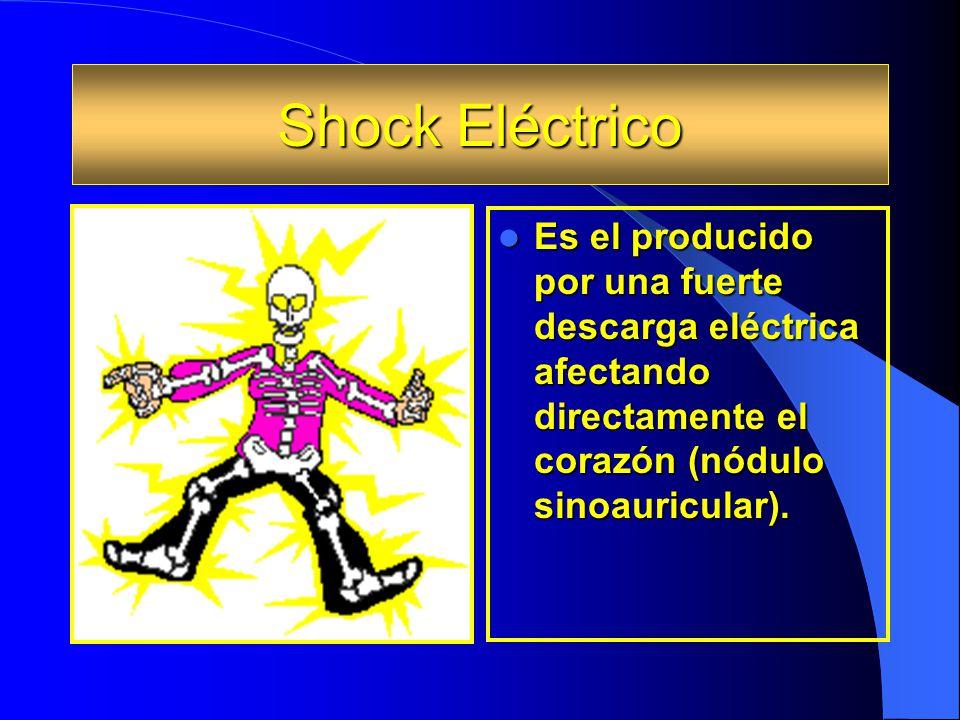 Shock Eléctrico Es el producido por una fuerte descarga eléctrica afectando directamente el corazón (nódulo sinoauricular).