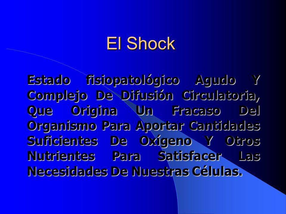El Shock