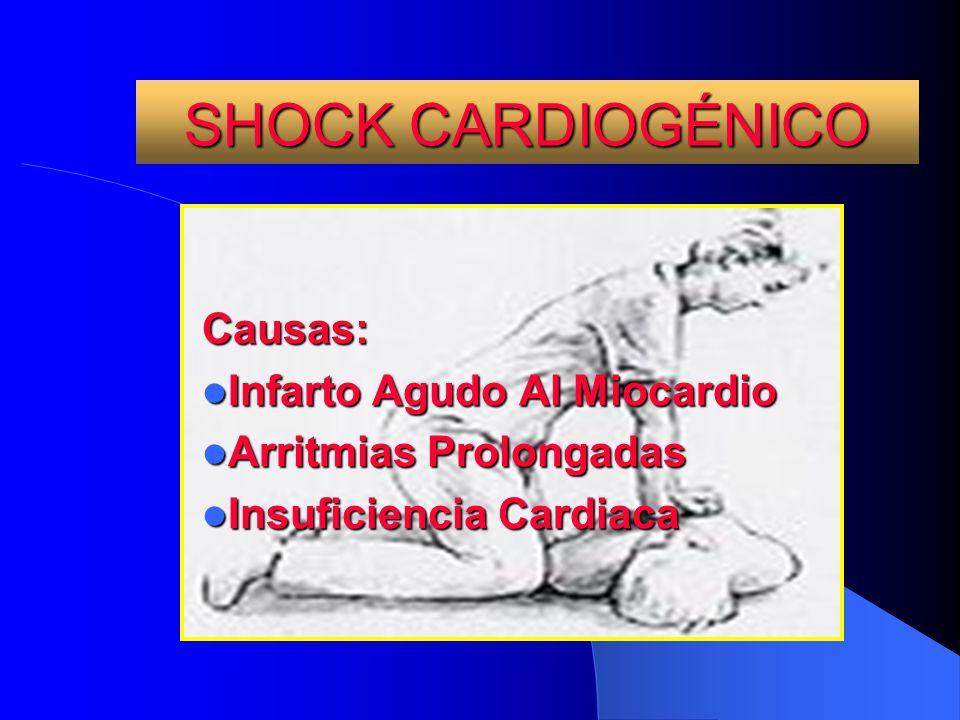 SHOCK CARDIOGÉNICO Causas: Infarto Agudo Al Miocardio