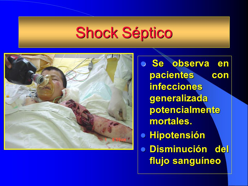 Shock Séptico Se observa en pacientes con infecciones generalizada potencialmente mortales. Hipotensión.
