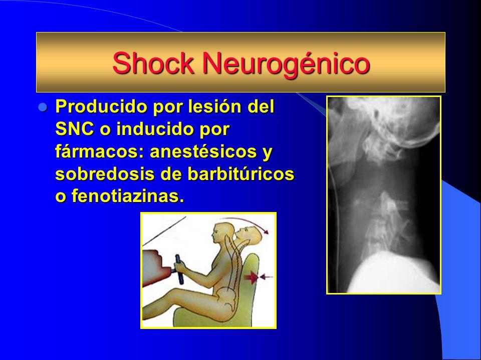 Shock Neurogénico Producido por lesión del SNC o inducido por fármacos: anestésicos y sobredosis de barbitúricos o fenotiazinas.