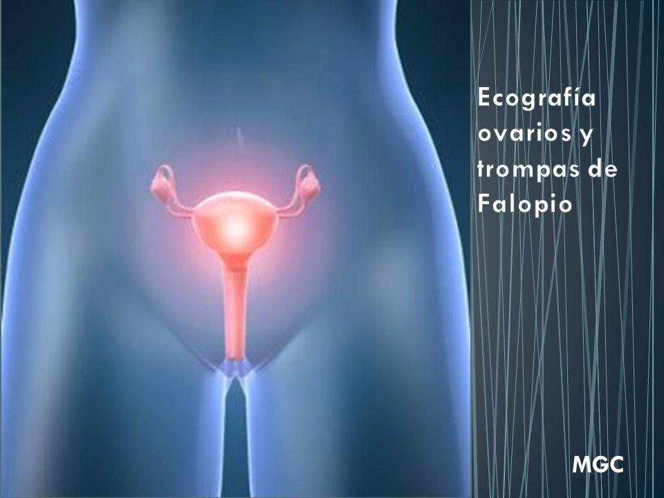 Ecografía ovarios y trompas de Falopio - ppt video online descargar