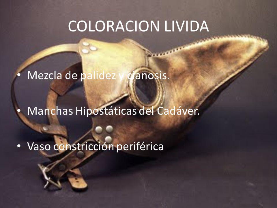 COLORACION LIVIDA Mezcla de palidez y cianosis.