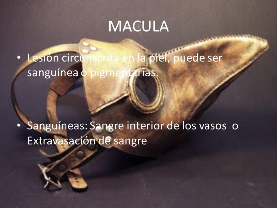 MACULA Lesión circunscrita en la piel, puede ser sanguínea o pigmentarias.