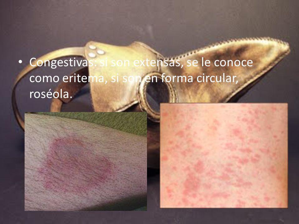 Congestivas: si son extensas, se le conoce como eritema, si son en forma circular, roséola.