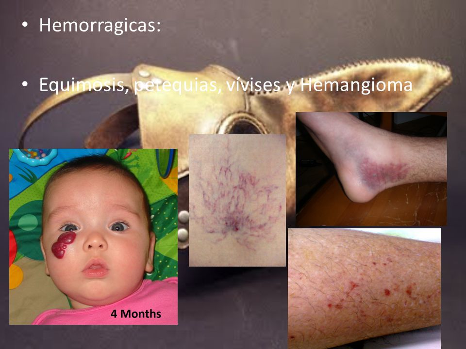 Hemorragicas: Equimosis, petequias, vívises y Hemangioma