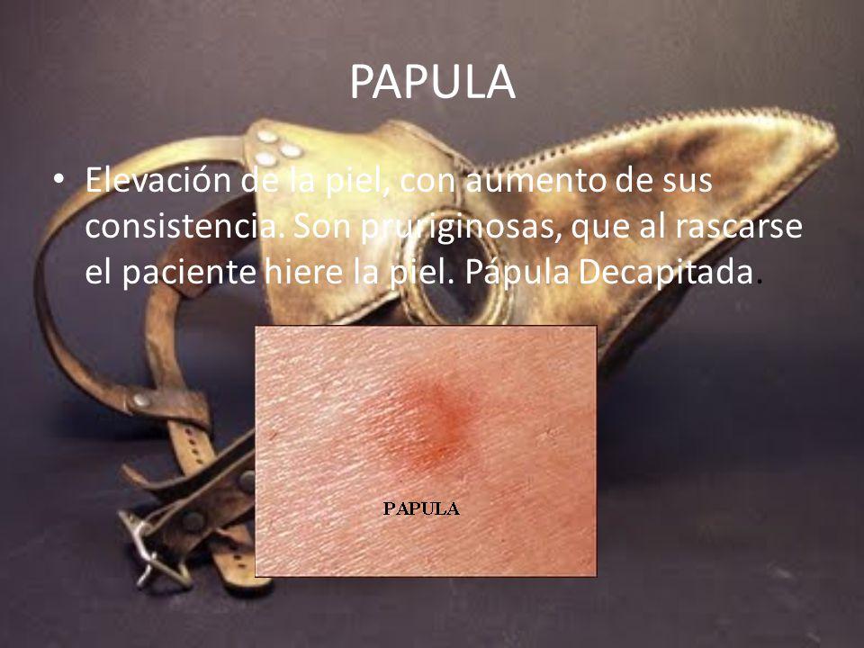 PAPULA Elevación de la piel, con aumento de sus consistencia.