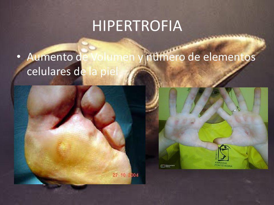 HIPERTROFIA Aumento de Volumen y número de elementos celulares de la piel