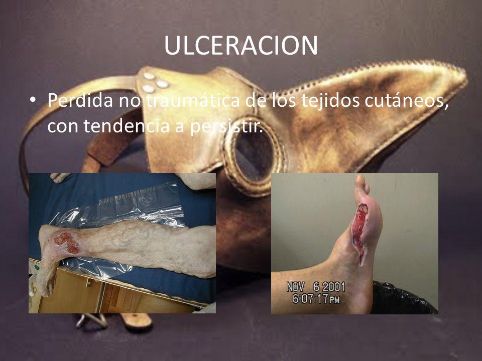 ULCERACION Perdida no traumática de los tejidos cutáneos, con tendencia a persistir.