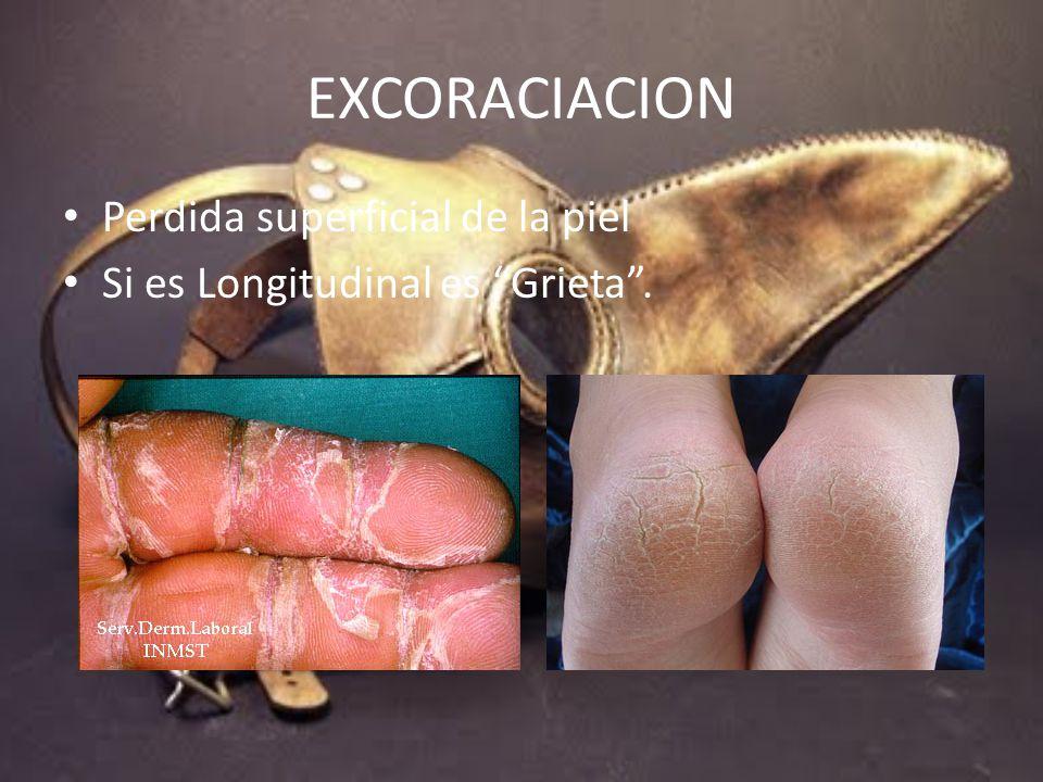 EXCORACIACION Perdida superficial de la piel