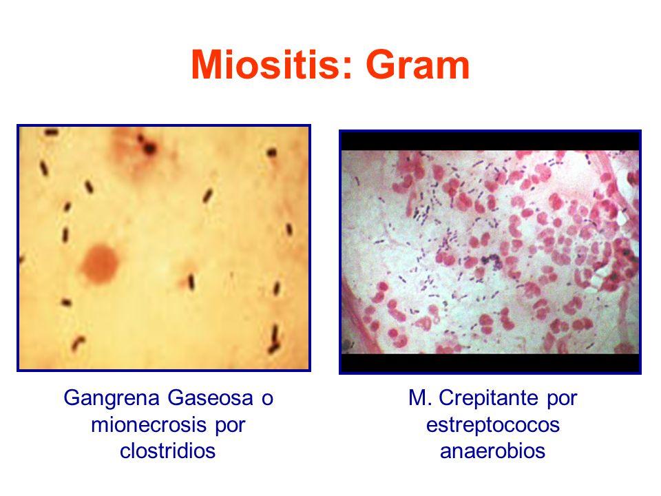 Miositis: Gram Gangrena Gaseosa o mionecrosis por clostridios