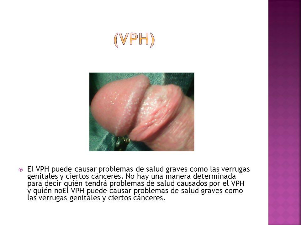 (VPH)