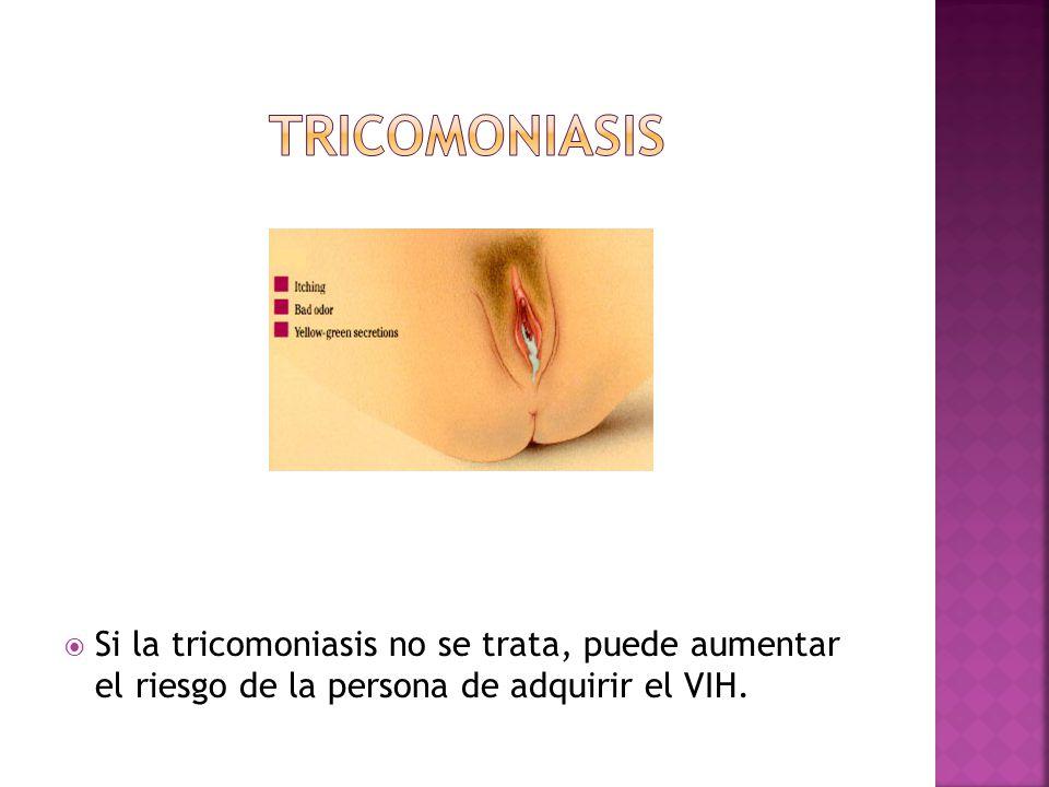 TRICOMONIASIS Si la tricomoniasis no se trata, puede aumentar el riesgo de la persona de adquirir el VIH.