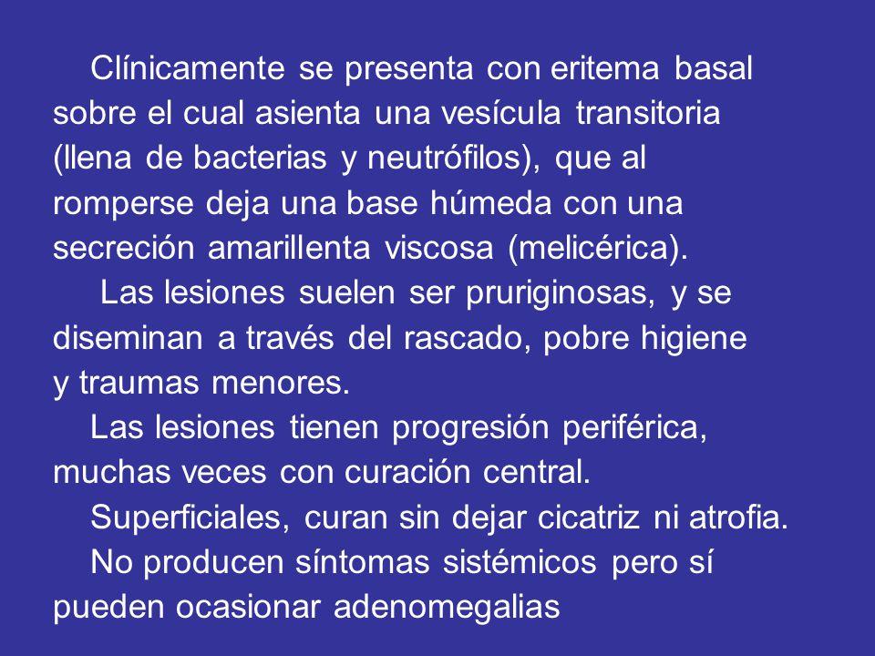 Clínicamente se presenta con eritema basal