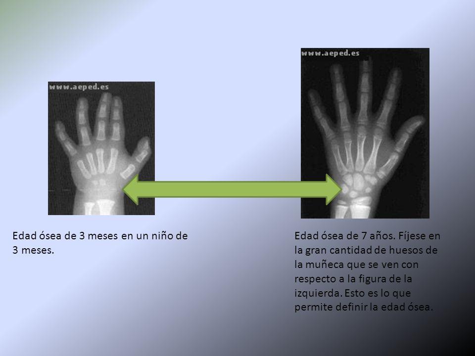 Único Anatomía De La Mano Izquierda Y La Muñeca Ilustración ...